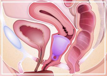 Поставяне на менструална чашка